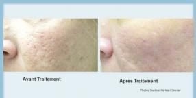 Cicatrices d'acné : En venir à bout avec l' ICON MAXG TM DECYNOSURE