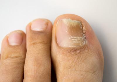Traitement mycose des ongles près de Lille