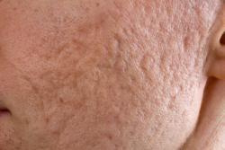 Traitement contre l'acné